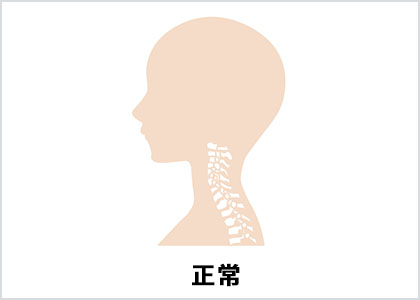 正常な首のアーチ(イラスト)