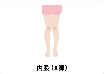 内股(X脚) (イラスト)