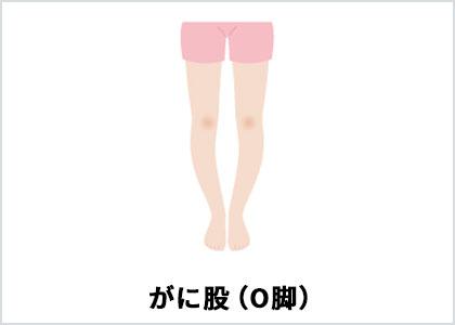 O脚(イラスト)